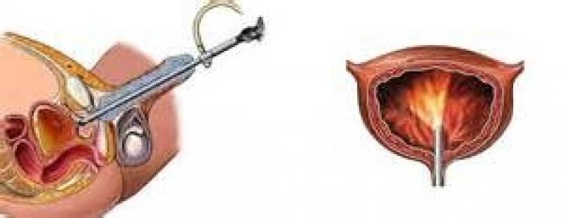 Biopsia de Próstata com Sedação no Tatuapé - Biopsia de Próstata