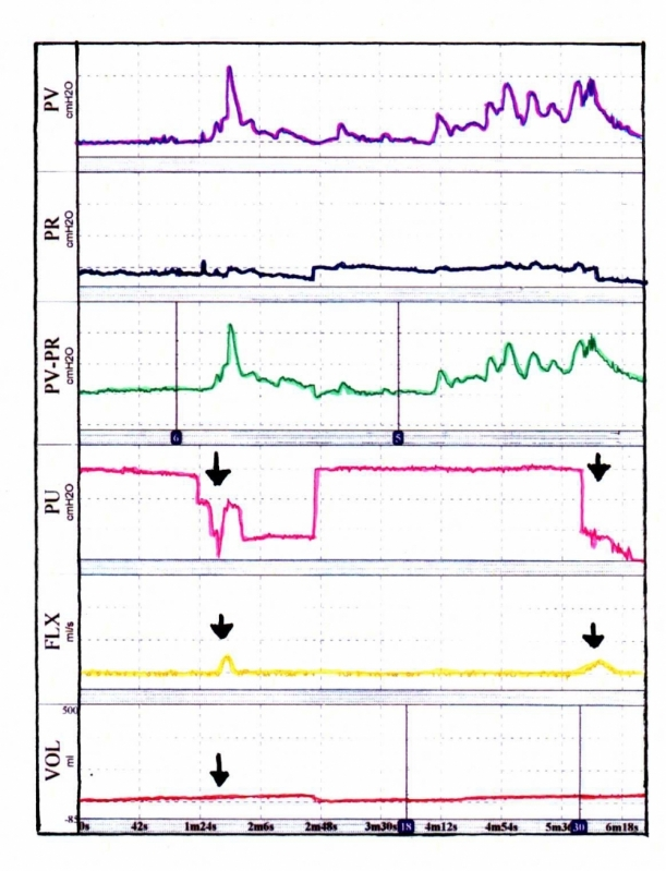 Biopsia de Próstata em SP Preço em Água Rasa - Urofluxometria