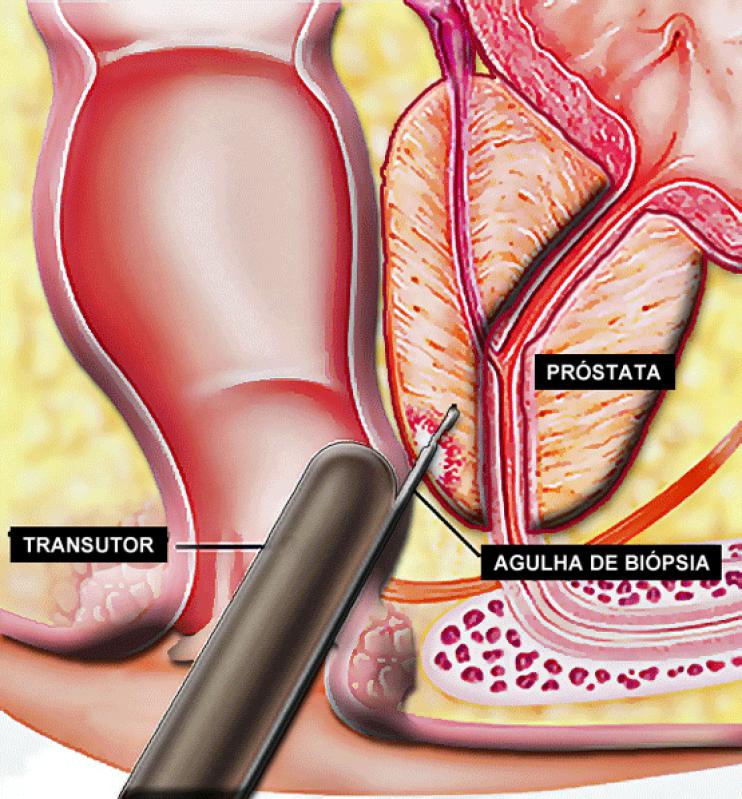 Biopsia Prostática com Eco Dirigida no Tatuapé - Biopsia de Próstata