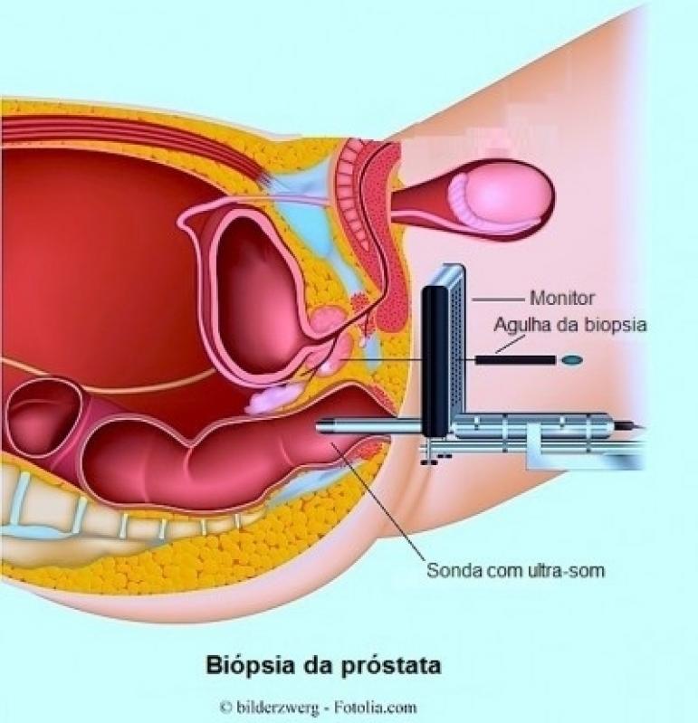 Biopsia Prostática Ecoguiada em Presidente Prudente - Biopsia de Próstata em São Paulo