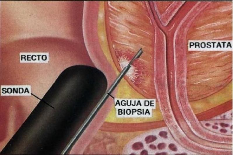 Biópsia Prostática Transretal em Engenheiro Goulart - Biopsia de Próstata