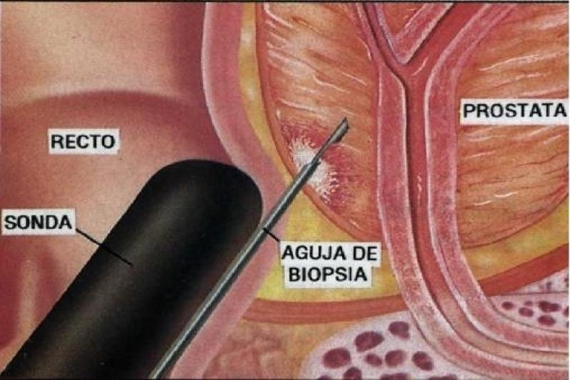 Biopsias Prostáticas Ecoguiadas em Guaianases - Biopsia Prostática