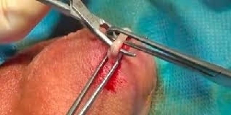 Cirurgia de Fimose a Laser Sapopemba - Cirurgia de Fimose Adulto