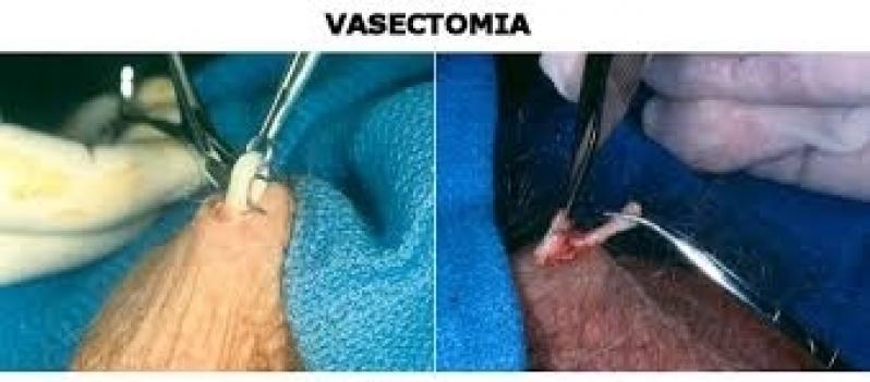 Clínica para Cirurgia de Fimose Adulto Tatuapé - Cirurgia Fimose Parcial