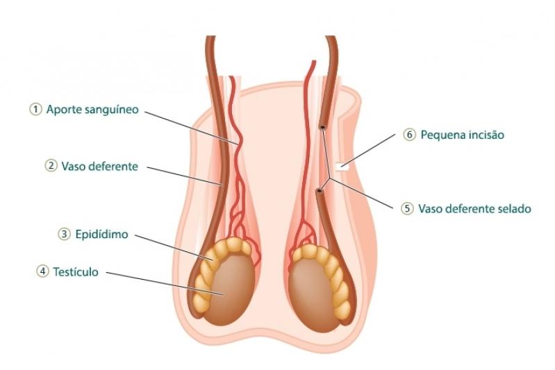Clínica para Cirurgia para Tirar Fimose Parque São Lucas - Cirurgia de Fimose