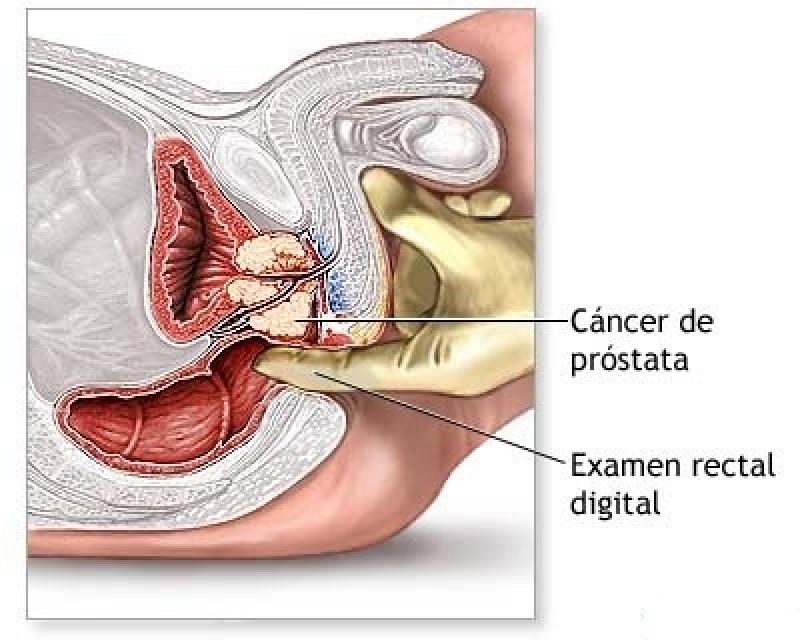 Especialista em Urologia em SP em José Bonifácio - Urologista