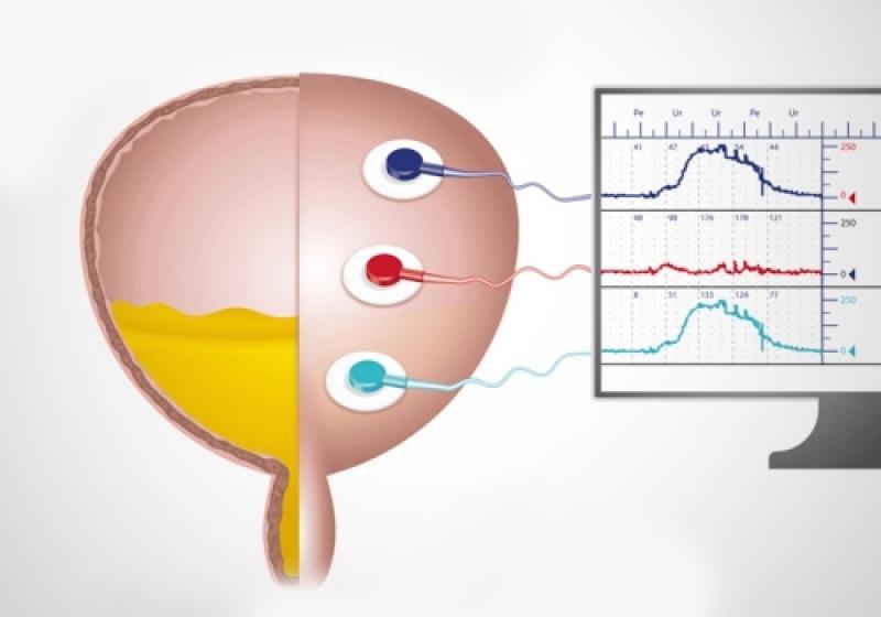 Estudo Urodinâmico em Mauá - Biopsia para Câncer de Próstata