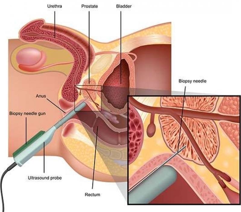 Onde Encontrar Biopsia Prostática Ecoguiada em São Bernardo do Campo - Biopsia de Próstata com Sedação