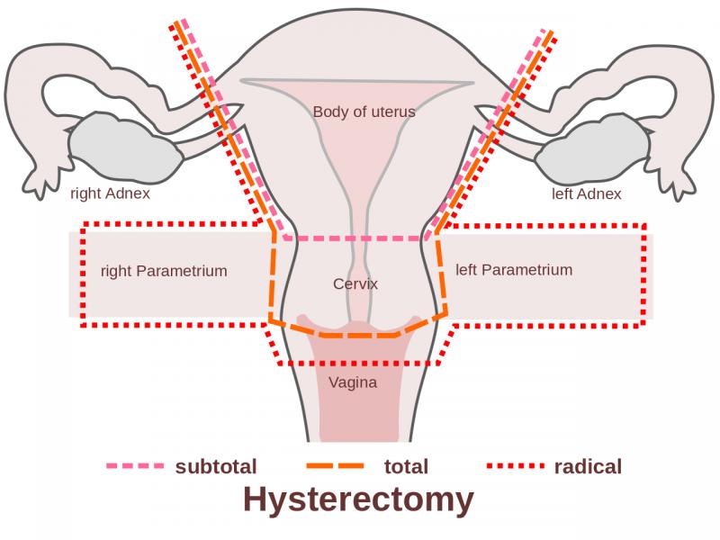 Onde Encontro Clínica de Vasectomia em SP em Sapopemba - Vasectomia Parcial
