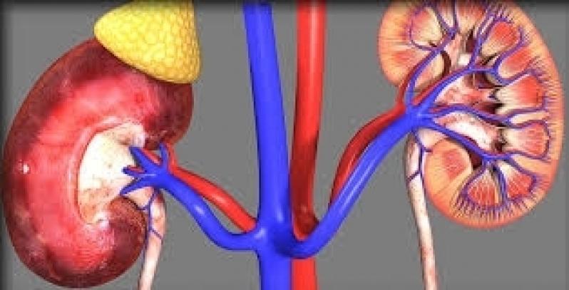 Onde Encontro Clínica Medica de Urologia na Penha de França - Clínica de Urologia em São Paulo