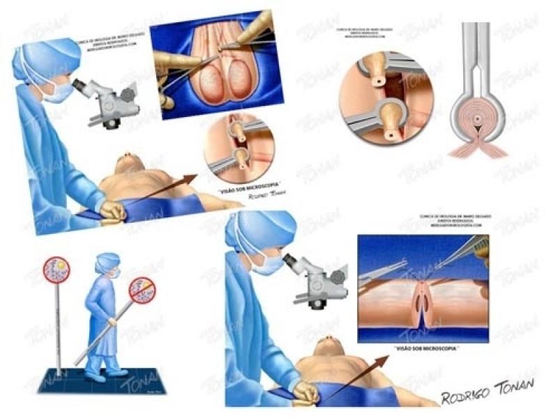 Onde Encontro Médico para Cirurgia de Vasectomia no Parque São Jorge - Vasectomia Particular