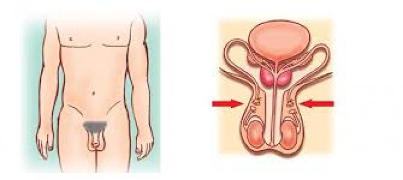 Onde Faz Cirurgia para Tirar a Fimose Anália Franco - Cirurgia Fimose Completa