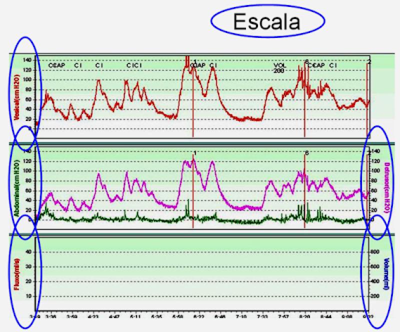 Quanto Custa Avaliação Urodinâmica em Santo Amaro - Biopsia de Próstata