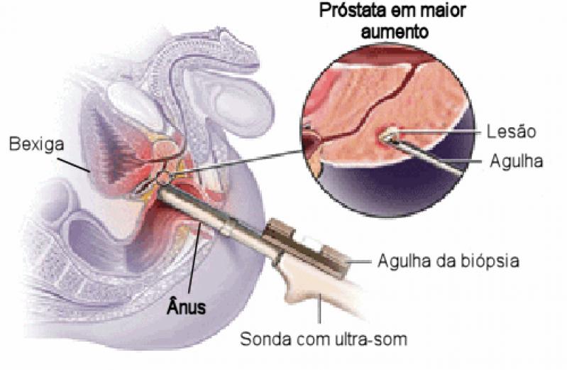 Quanto Custa Biopsia de Próstata com Sedação em Embu Guaçú - Biopsia de Próstata