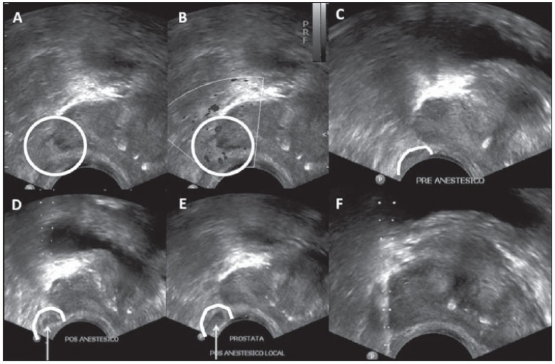Quanto Custa Biopsia Prostática Ecoguiada na Vila Curuçá - Estudo Urodinâmico