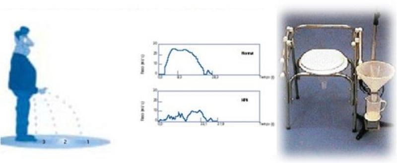 Quanto Custa Urofluxometria na Penha de França - Biopsia de Próstata com Sedação