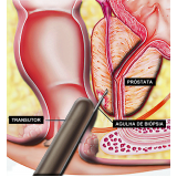 biopsia prostática com eco dirigida na Vila Curuçá