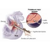 biópsia prostática de saturação na Penha