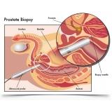 biopsia prostática ecoguiada preço na Vila Prudente