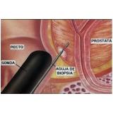 biópsia prostática transretal na Mooca