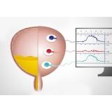 biopsias de próstata com sedação na Pedreira