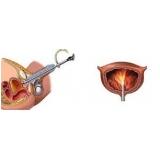 biopsia de próstata com sedação