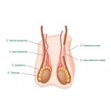 cirurgia de fimose a laser particular Água Rasa