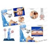 clínica para cirurgia fimose parcial Anália Franco