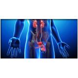 clínicas médicas urológicas em Votuporanga