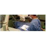 médico para cirurgia de vasectomia em Francisco Morato
