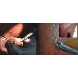 onde encontrar penioscopia com biopsia na Penha