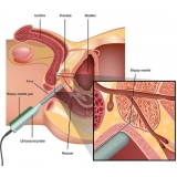 quanto custa biopsia prostática em Aricanduva