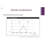 urofluxometria preço na Vila Carrão
