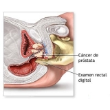 urologista com urgência