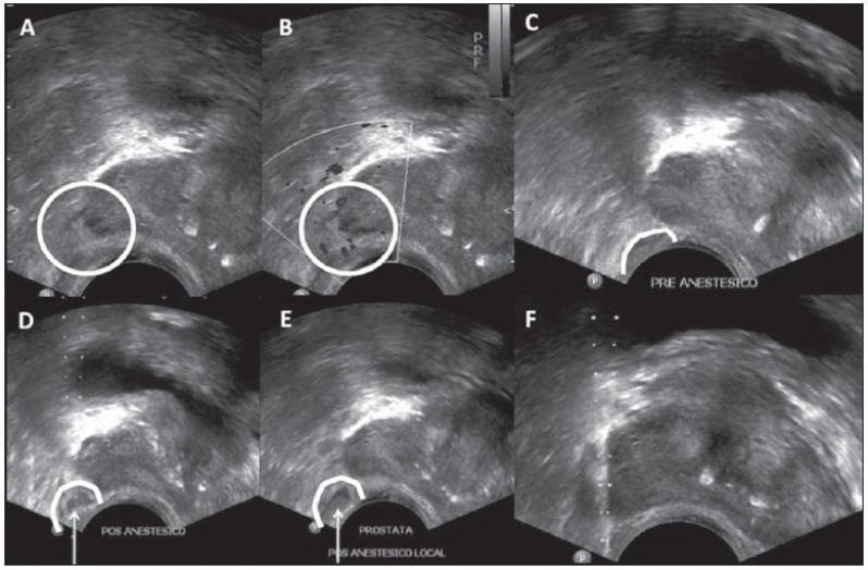 Ultrassonografia de Próstata em São Bernardo do Campo - Biopsia de Próstata