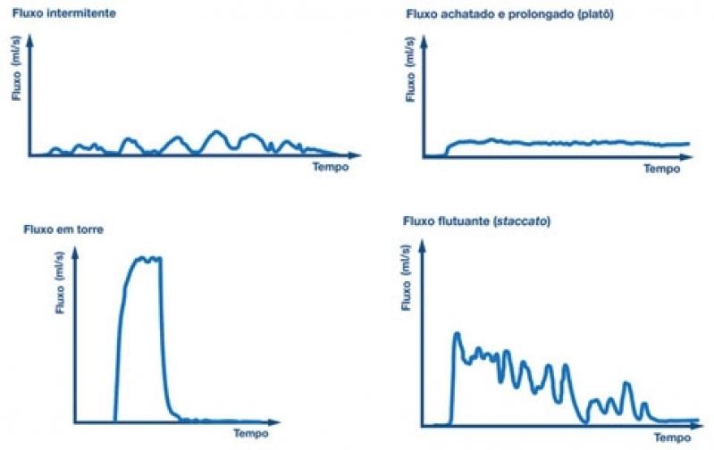 Urofluxometria em Sp na Vila Matilde - Biopsia de Próstata com Sedação