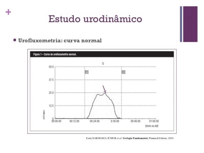 Urofluxometria Preço em Itu - Biopsia de Próstata